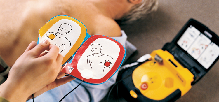 Must you train staff to use Automated External Defibrillators?